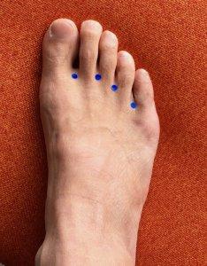 足の指の間にあるツボ「八風」